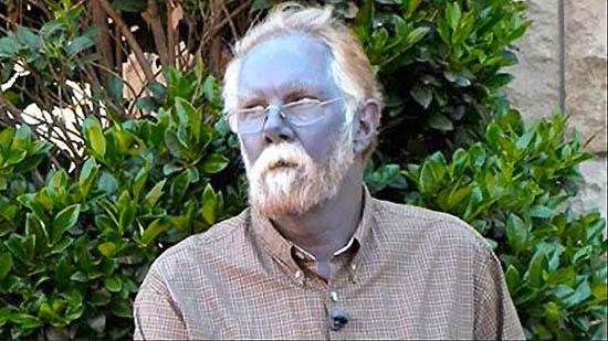 hombre de piel azul genética